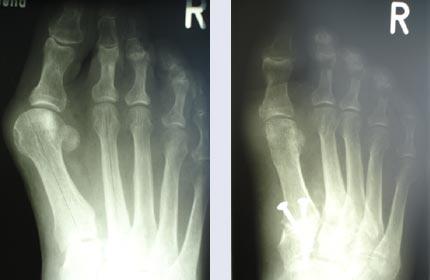 Abb: Starke Fehlstellung mit gleichzeitiger Instabilität im Gelenk bzw. nach Verschraubung des instabilen Gelenkes und Korrektur im Zehengrundgelenk